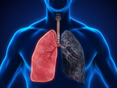 Trijų vaistų derinys viename inhaliatoriuje gydyti lėtinei obstrukcinei plaučių ligai. TRIBUTE klinikinio tyrimo duomenys